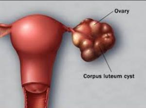 Kista Korpus Luteum, cara pencegahan kista ovarium